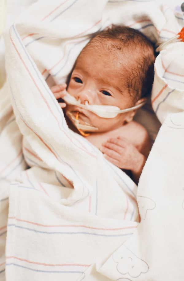 Pumping for Micropreemie | Miracle Medicine